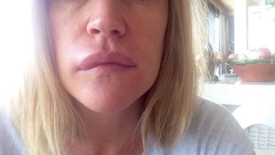 My allergy nightmare: Leila McKinnon discovers a potential cure to a lifelong battle way too late