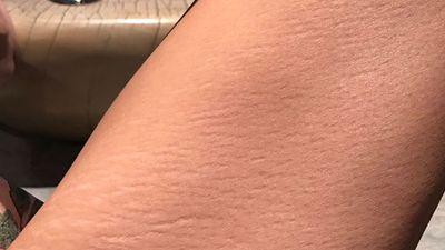 Chrissy Teigen inspires fans by sharing her stretch marks on social media