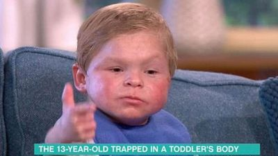 Teenage boy looks like a toddler due to 'one-of a-kind condition'