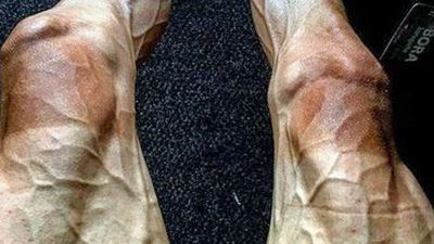 Tour de France cyclist shares confronting image of legs after 16 days on the bike