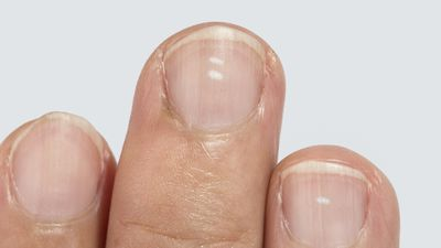 Myths busted: What those white spots on your nails really mean