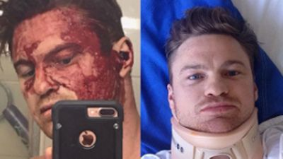 Ex-Demon Colin Sylvia suffers broken neck in balcony fall