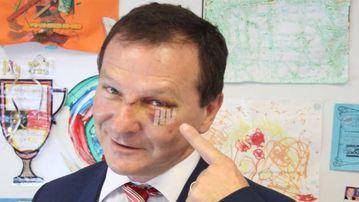 Queensland MP Graham Perrett got a black eye while watching the TV show Veep. (Twitter)