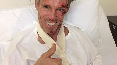 Aussie cycling legend hurt in training ride crash