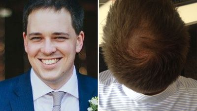 'Screw it, I'll just go bald': Losing hair and not being okay with it