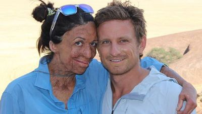 Turia Pitt shares excitement about her son's impending birth
