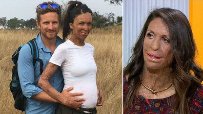 Turia Pitt shares on love, life and pregnancy