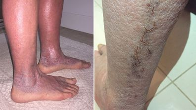 Her feet turned purple, discolouration and scaly raw skin formed cracks down her legs.