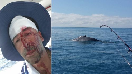 Oliver Galea suffered a deep head laceration when a whale struck his boat.(Facebook)
