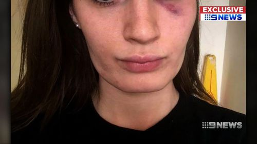 One of her daughters, 26, had a seizure during the attack.