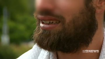 The victim needed dental surgery after he was set upon outside a Sydney bus.