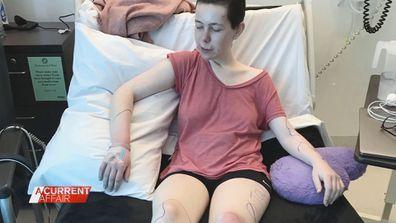 Young woman's rare debilitating condition