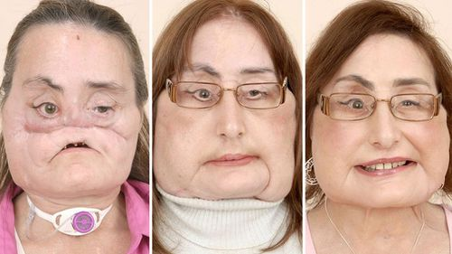 Connie Culp received the first near-total face transplant in the US.