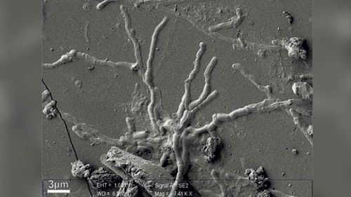 Scientists find brain cells in skull of man killed nearly 2000 years ago