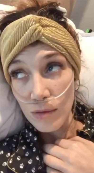 Delta Goodrem had surgery in October 2018 to remove the salivary gland