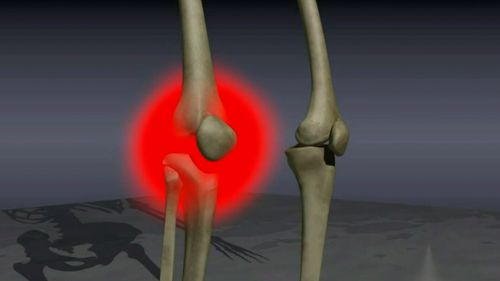 More than two million people in Australia have osteoarthritis.