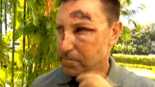 Allenby was injured on a night out in Hawaii.