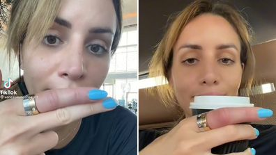 Vanessa Sierra forced to have her rings cut off a swollen finger