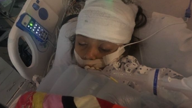 Aurea Soto Morales fell into a coma after suffering brain swelling.