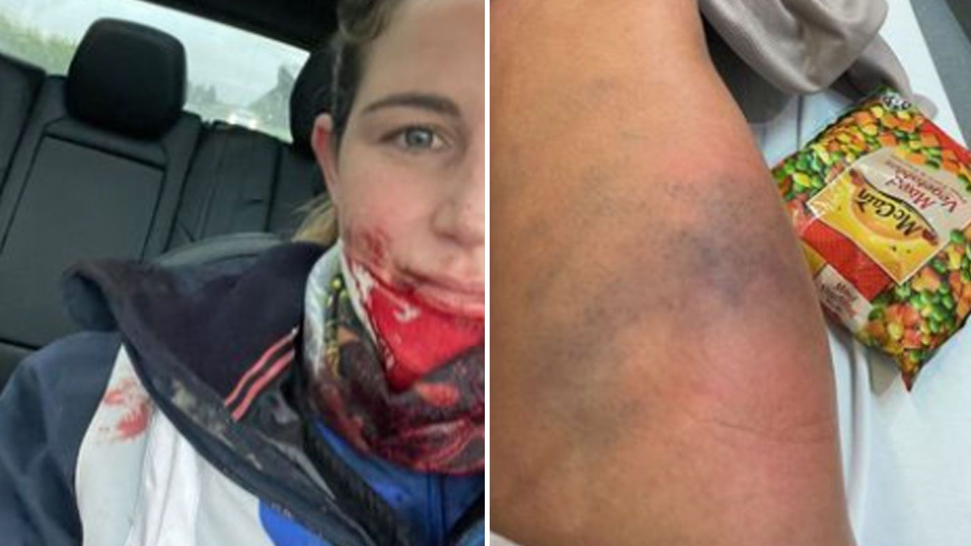 Michelle Payne posted her injuries to Instagram after being kicked in the face by a horse.