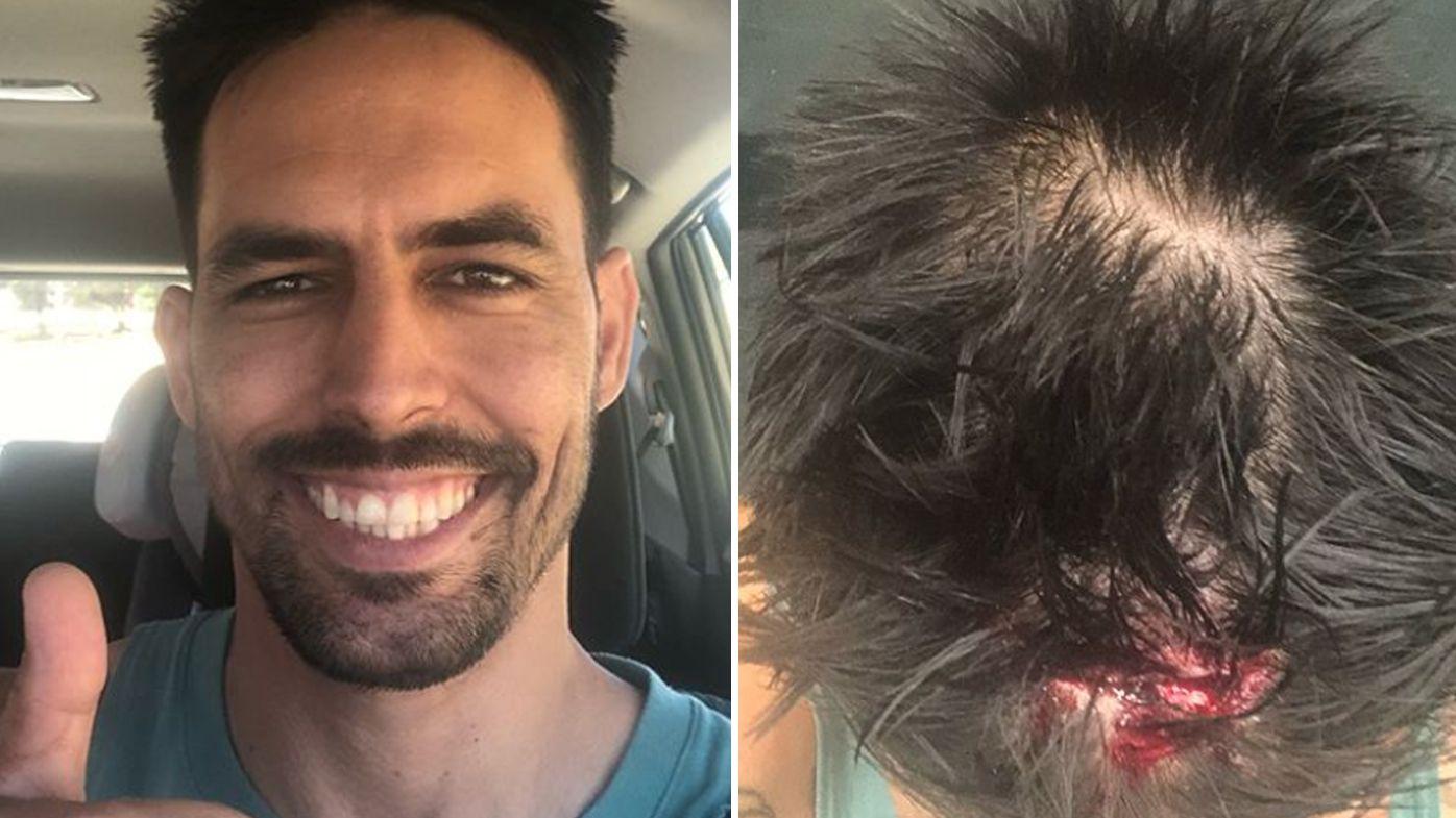 Legendary cricketer Mitchell Johnson receives stitches after nasty head cut