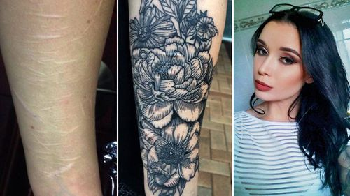 Brisbane woman inundated with requests after offering to tattoo people's scars for free