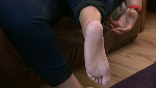 A knee joint will be created using Ms Moody's foot. (9NEWS)