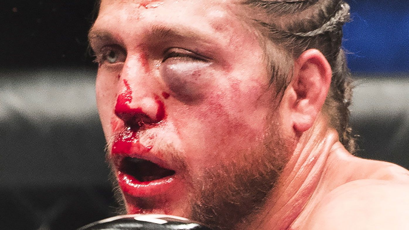 UFC contender Brian Ortega's amazing recovery from Max Holloway beating