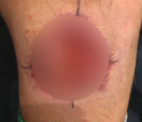A flesh-eating bug which causes an infectious disease called Buruli ulcer is on the rise in regional Victoria.