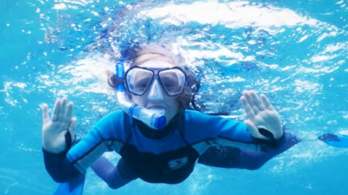 Ten-year-old Jackson was bitten by a shark yesterday off Coral Bay.