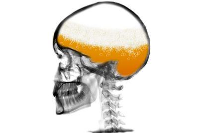Alcohol kills brain cells