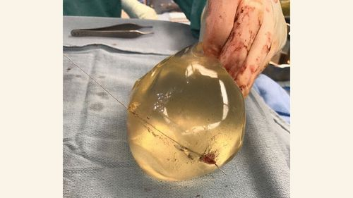 Doctors believe the woman's life was saved because of her implants, which affected the trajectory of the bullet.