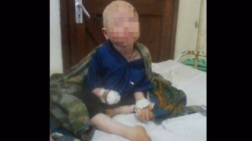 Albino boy's hand hacked off for witchcraft