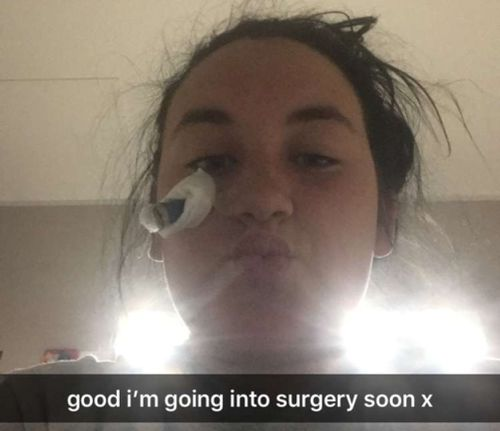 Candi sent this Snapchat before her operation.