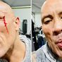 Dwayne Johnson suffers face injury during workout