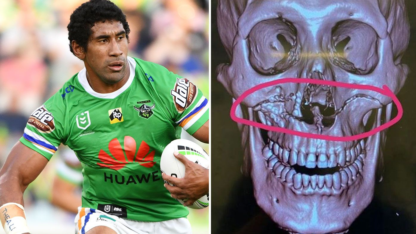 Iosia Soliola and scans of his facial fracture