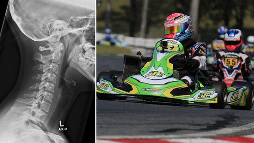 EXCLUSIVE: Aussie karting teen returns to track after horror bone break