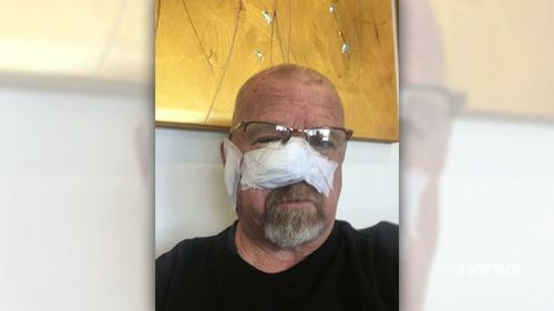 Greg Ferrington has had eight cancers removed from his head.