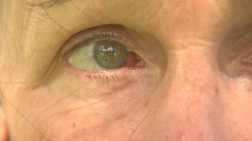 Ms McGlinchen suffered minor bruising around her eye after the incident. (9NEWS)