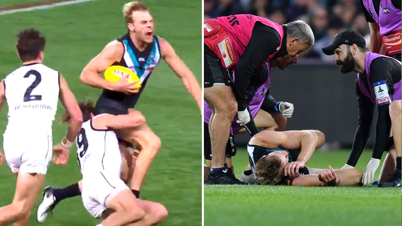 AFL: Port Adelaide confirms Jack Watts broken leg and dislocated ankle
