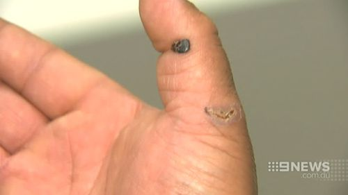 Mr Tuiloma was bitten on the hand and underwent blood tests. (9NEWS)