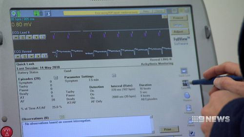 The devices can monitor heart rhythms. Picture: 9NEWS
