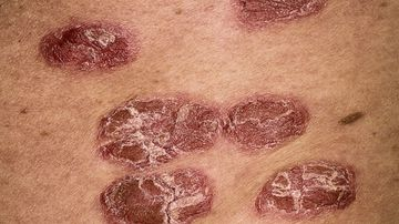 New treatment for psoriasis sufferers