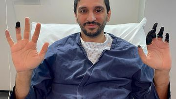 Qatari climber Fahad Badar's summit of Broad Peak in Pakistan faced numerous challenges, and he suffered severe frostbite to his fingers.