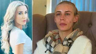 'Kidnapped' woman to shave rest of her head in emotional blow