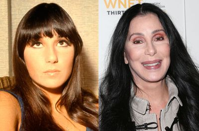 """The self-confessed """"plastic surgery poster girl,"""" is constantly on a mission to turn back time. According to the singer, """"the truth is that in my job becoming old and becoming extinct are one and the same.""""  While she readily admits to rhinoplasty, browlift and breast augmentation, the 67-year-old is adamant that """"my cheeks are my own."""""""