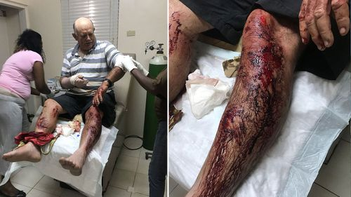 Stephen Higgs suffered serious lacerations to his arms and legs. (Bahamas Post)