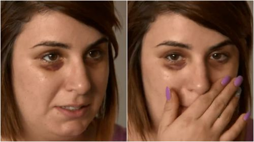 Rita Iliopoulos was brutally assaulted in full view of the public, suffering a broken nose, swelling and bruising. (9NEWS)