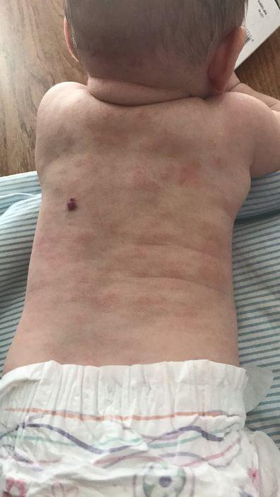 Poppy eczema back