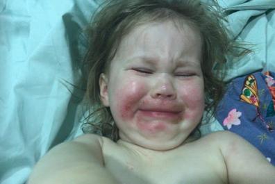 Poppy eczema baby